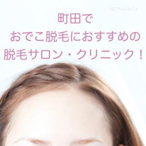 町田でおでこを脱毛するのにおすすめのサロン・クリニックを徹底比較!の写真